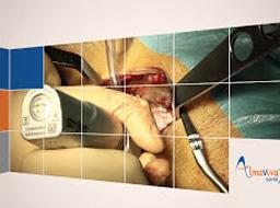 Prothèse de hanche par voie antérieure