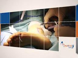 La Ligamentoplastie de la cheville en ambulatoire