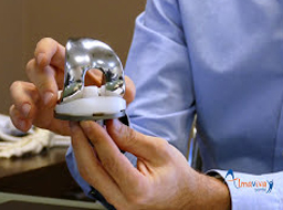 Prothèse de genou par guides de coupe à la Clinique Chantecler