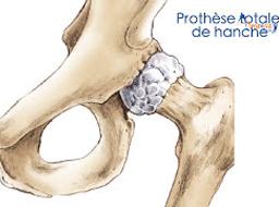 Votre prothèse de hanche à la Clinique Arago